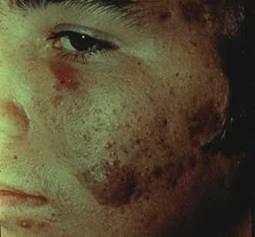nodulocystic-acne-2